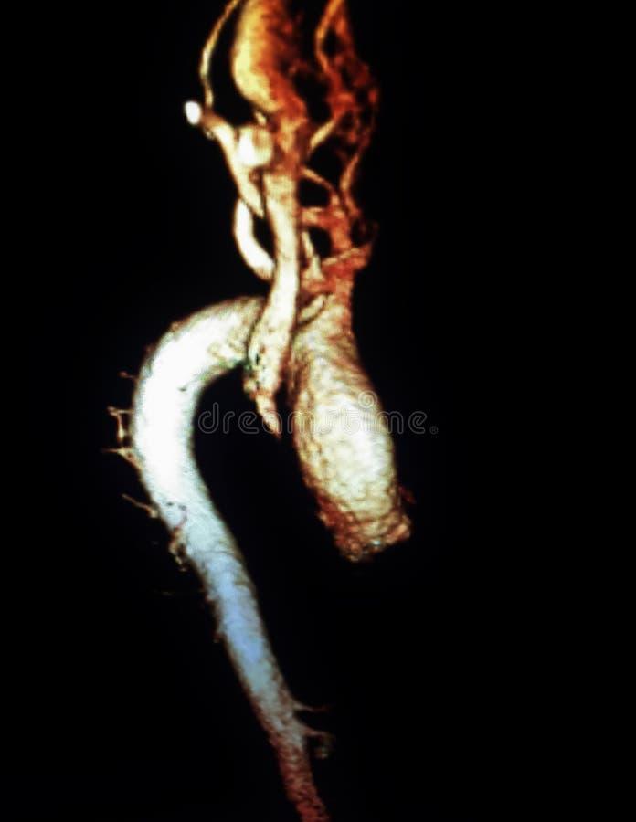 Thoracic aorty tętniaka mra zdjęcie royalty free