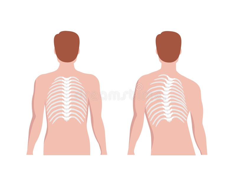 Thoracic Scoliosis on the thoracic spine and straight backbone concept vector illustration in flat design isolated on. White background. Scoliosis medical royalty free illustration