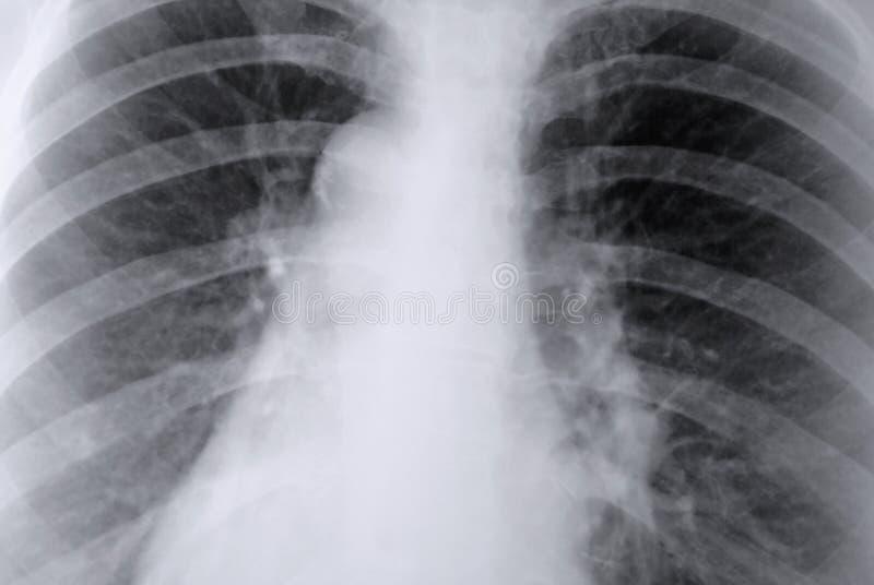 Thorax-Röntgenstrahl der Lungen stockbilder