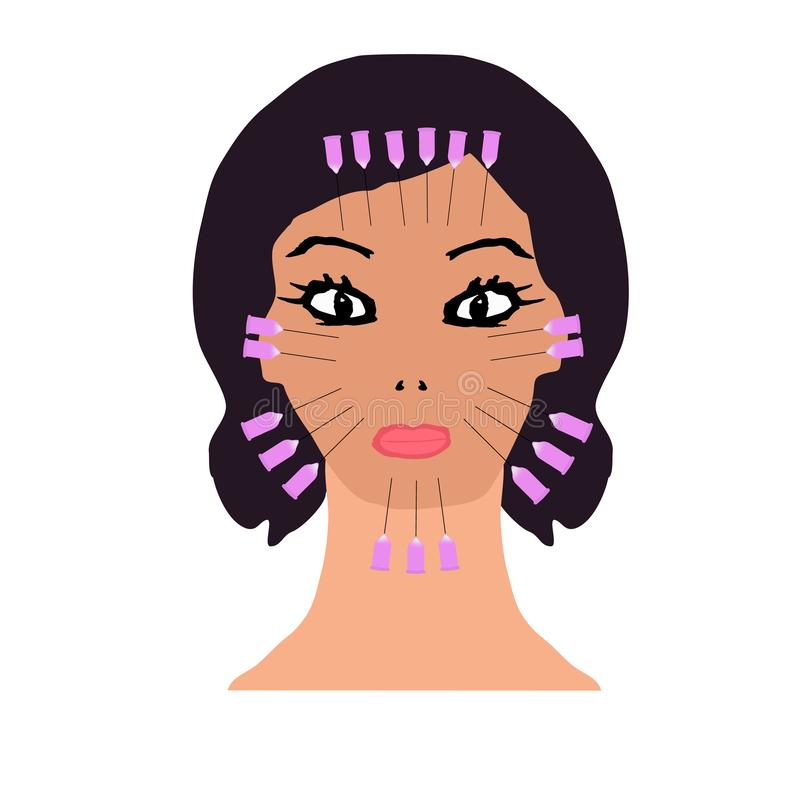 Thread lifting on the face. Threads for a facelift. Mesotherapy Wrinkles. Infographics. Vector illustration on isolated royalty free illustration