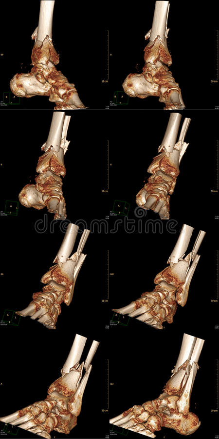 Download Three-Dimensional Ankle Stock Photo - Image: 14771790