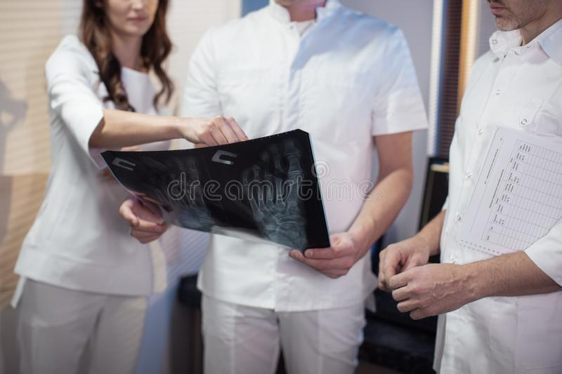 Three doctors look at an x-ray photo of a patient together stock images
