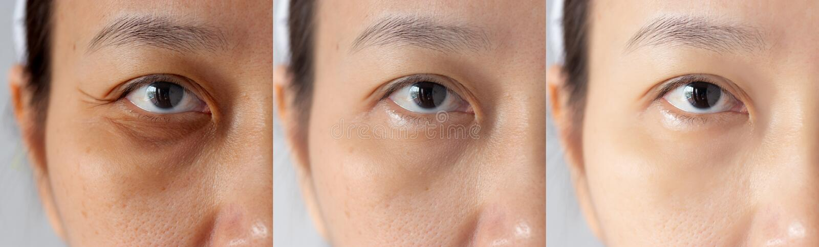 Three pictures compared effect Before and After treatment. under eyes with problems of dark circles ,puffiness and wrinkles royalty free stock image
