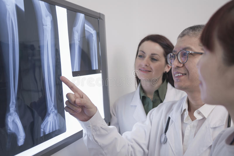 Three smiling doctors looking at x-rays of human bones, one doctor is pointing stock photos