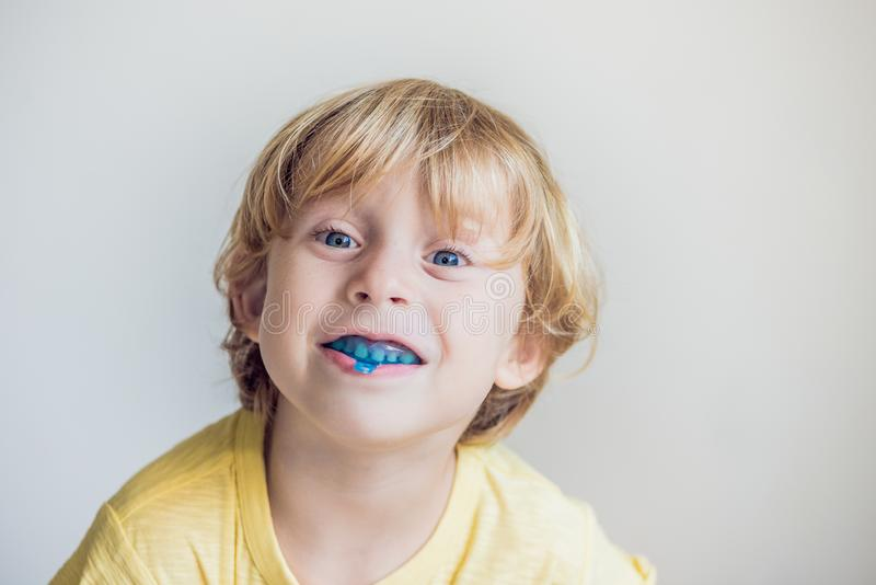 Three-year old boy shows myofunctional trainer to illuminate mouth breathing habit. Helps equalize the growing teeth and. Correct bite. Corrects the position of stock photos