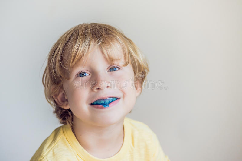 Three-year old boy shows myofunctional trainer to illuminate mouth breathing habit. Helps equalize the growing teeth and correct. Bite. Corrects the position of royalty free stock image
