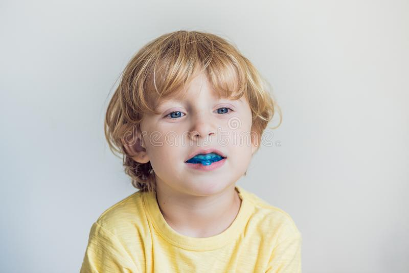 Three-year old boy shows myofunctional trainer to illuminate mouth breathing habit. Helps equalize the growing teeth and. Correct bite. Corrects the position of royalty free stock images