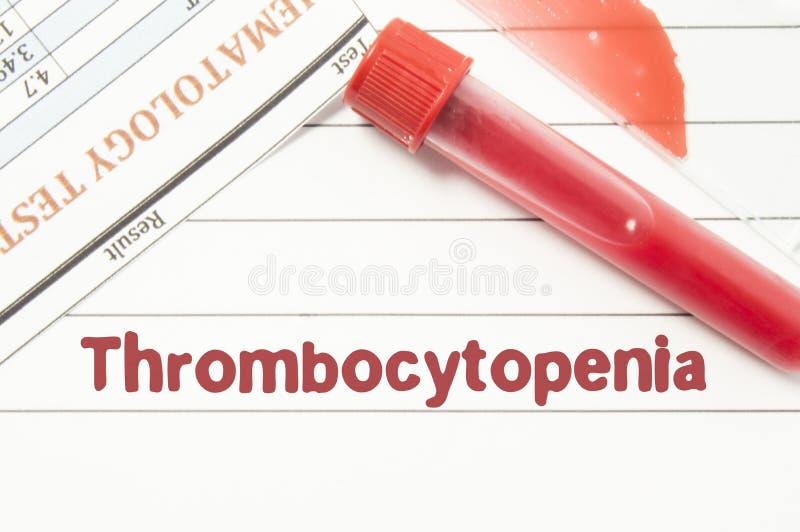 Thrombocytopenia do diagnóstico O bloco de notas com texto etiqueta o Thrombocytopenia, tubos de análise laboratorial para o sang fotografia de stock royalty free