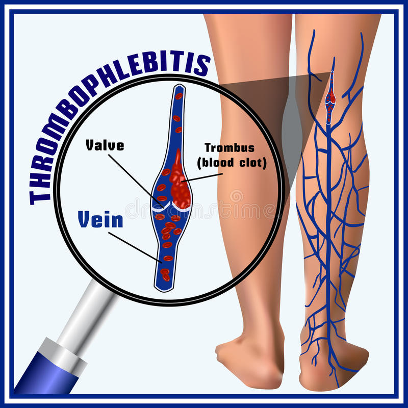 Thrombophlebitis, blood clots in the veins. Embolism. Thrombosis vector illustration