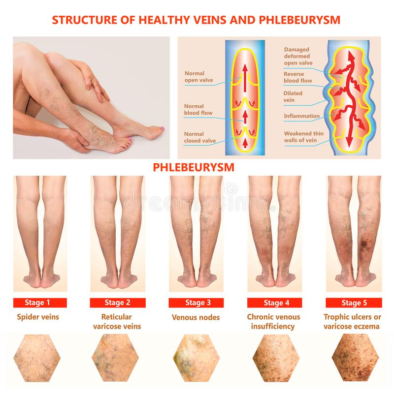 Thrombophlebitis. Deep Vein Thrombosis. Varicose veins. Phlebeurysm. Structure of normal veins and unhealthy vein stock photography