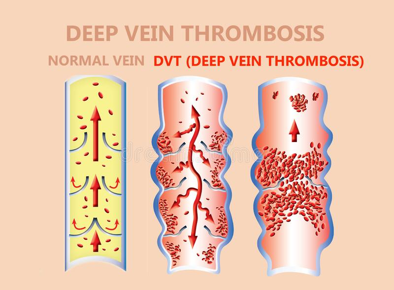 Thrombosis. From Normal blood flow to Blood clot formation. And clot, that travels through the bloodstream. embolism. illustration for biological, medical, and royalty free illustration