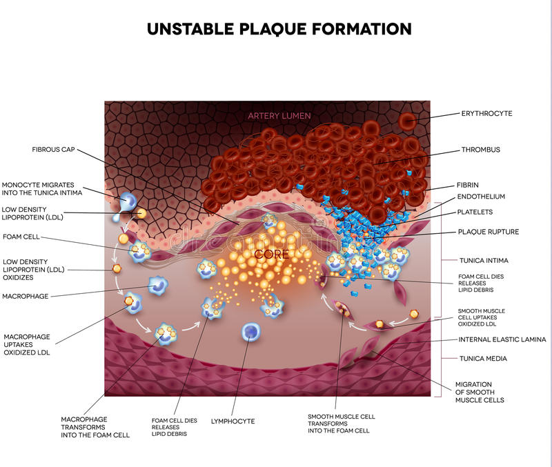 Thrombus, blood clot, unstable plaque. Formation in the artery. Plaque rupture detailed anatomy illustration. Illustrative diagram how atherosclerosis is royalty free illustration