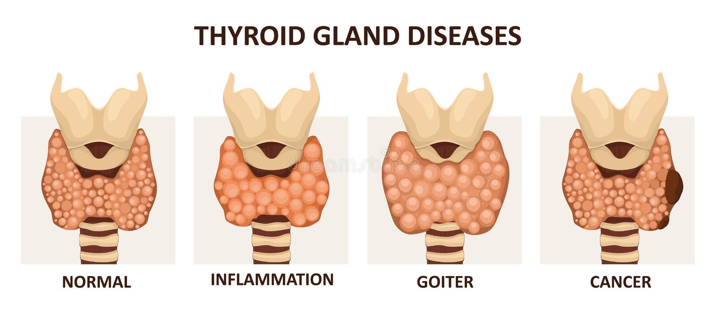 Thyroid gland diseases stock illustration