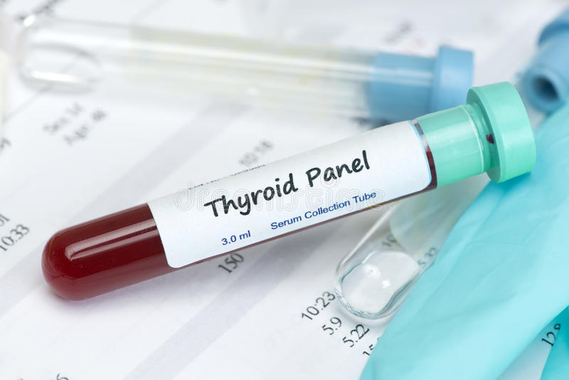 Thyroid Test Sample. Thyroid hormone test blood sample in collection tube with laboratory report. Label is fictitious, and any resemblance to any actual product stock photo