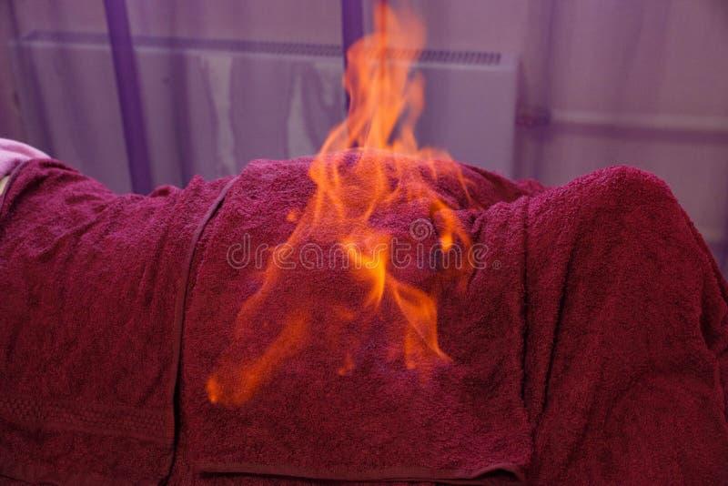 Tibetan fire massage. Traditional tibetan medicine, fire treatment and bodycare concept royalty free stock image