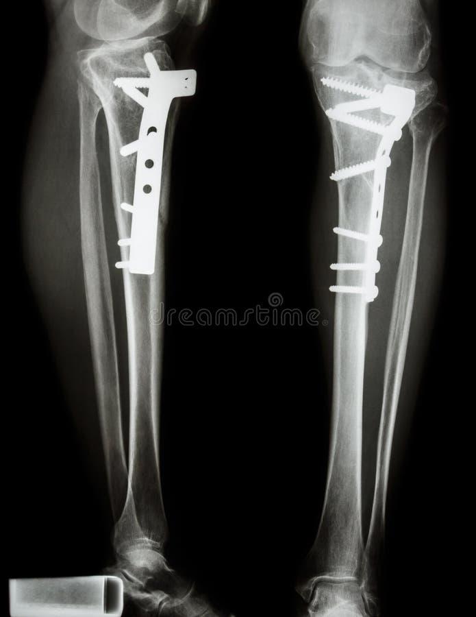 Tibia de fracture (os de jambe) photo stock