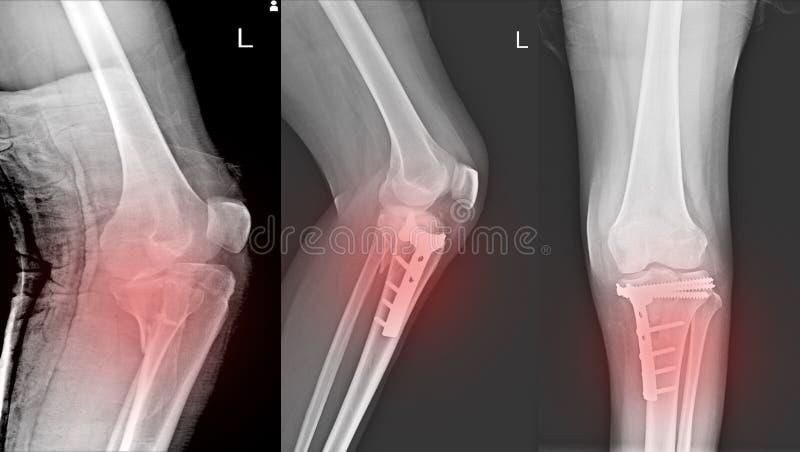 Tibia proximal de fracture d'articulation du genou de rayon X et tibia proximal de fracture de difficulté de courrier image libre de droits