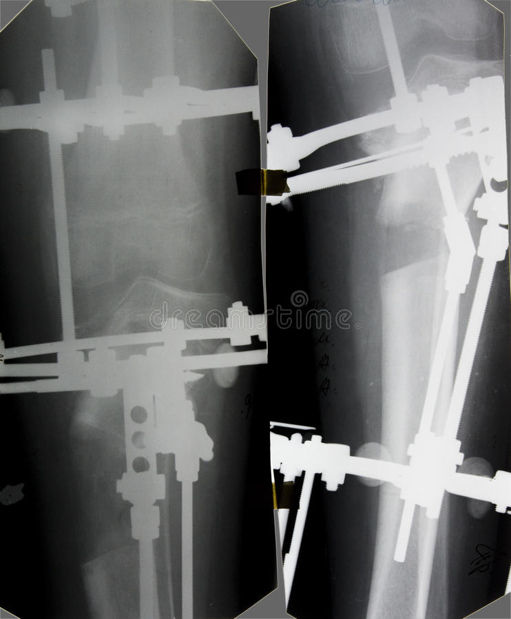 Tibia x-ray picture. Osteotomy and external fixation stock images