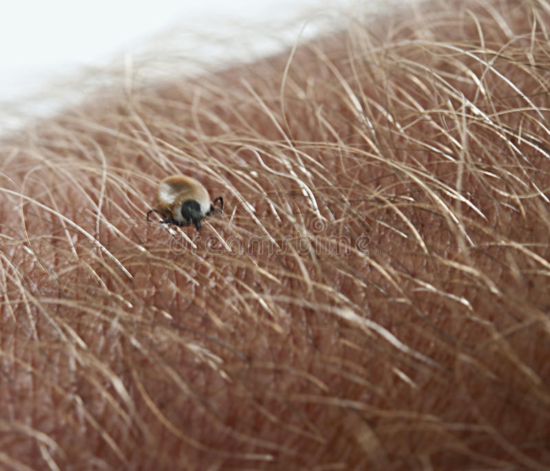 Tick. Sucking tick on a hairy man's arm stock photography