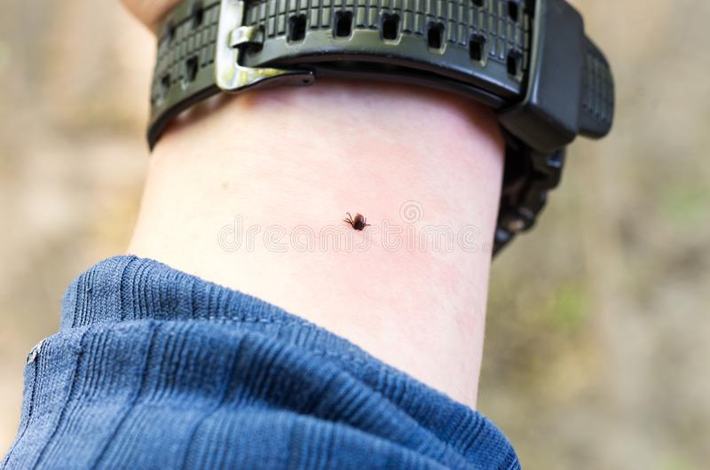 The tick bites his hand. Mite under the skin. The hand of man. royalty free stock photos