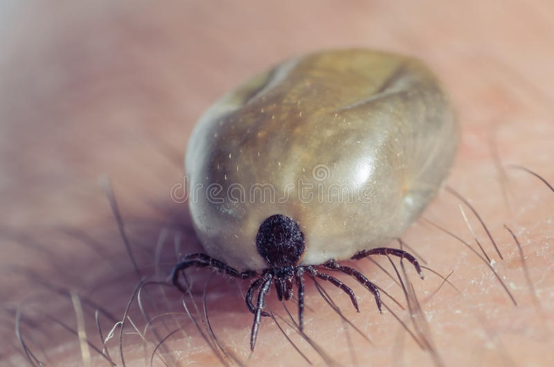 Tick filled with blood sitting on human skin.  royalty free stock image