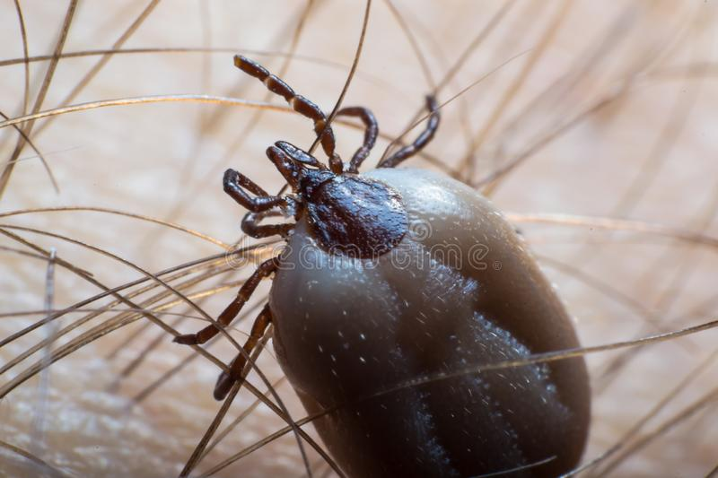 Tick on the human skin surface stock images
