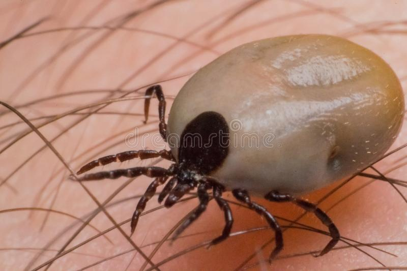 Tick on the human surface skin. Encephalitis tick Ticks on human skin. Ixodes ricinus can transmit both bacterial and viral pathogens such as the causative royalty free stock photo