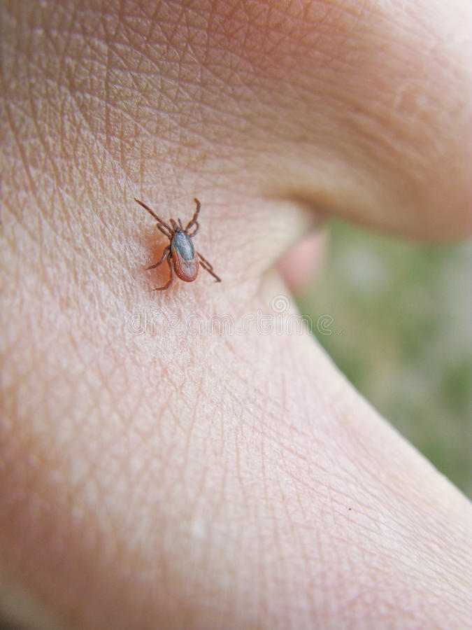 Tick on skin. Tick, ixodes ricinus, walking on the skin of a human stock photos