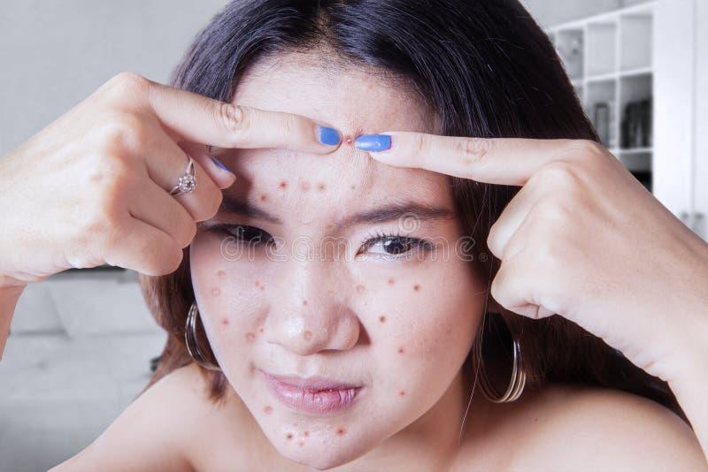 Tiener wat betreft acne stock foto's