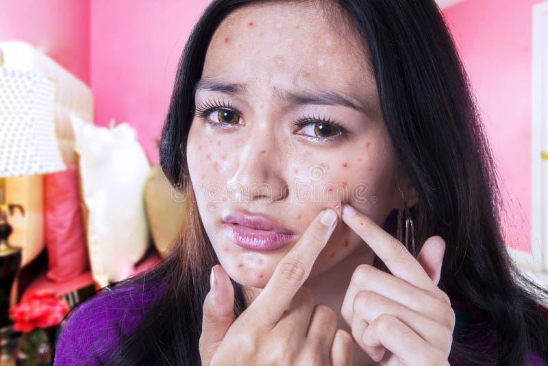 Tiener wat betreft acne op haar wang stock foto