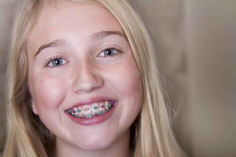 Tienermeisje met steunen op haar tanden stock foto
