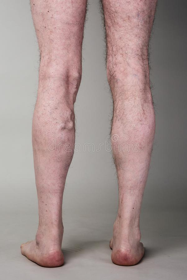 Tight varicose vein on a mans legs royalty free stock photos