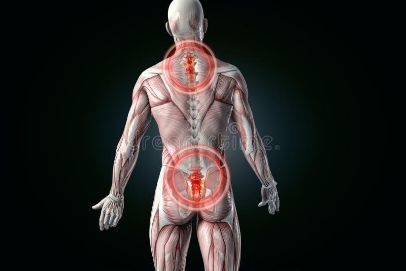 Tillbaka anatomisk vision smärtar tillbaka lägre smärtar stock illustrationer