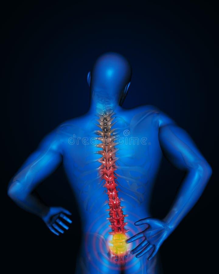 Tillbaka smärta ledning royaltyfri illustrationer