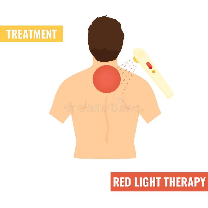 Tillbaka smärta vektorillustrationen Rött ljusterapi royaltyfri illustrationer