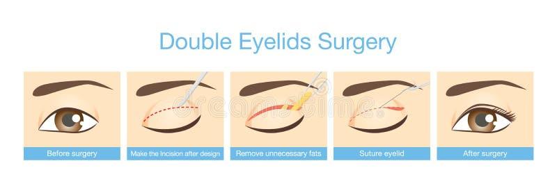 Tillvägagångssätt av dubbel ögonlockkirurgi stock illustrationer