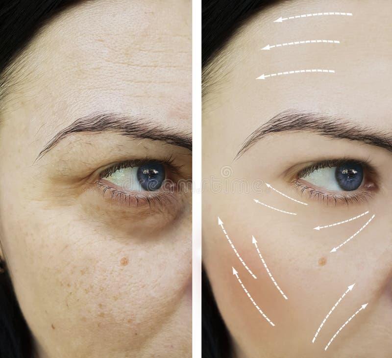 Tillvägagångssätt för föryngring för skillnad för kvinnaskrynklapigmentering foto-åldras mogna före och efter, royaltyfri fotografi