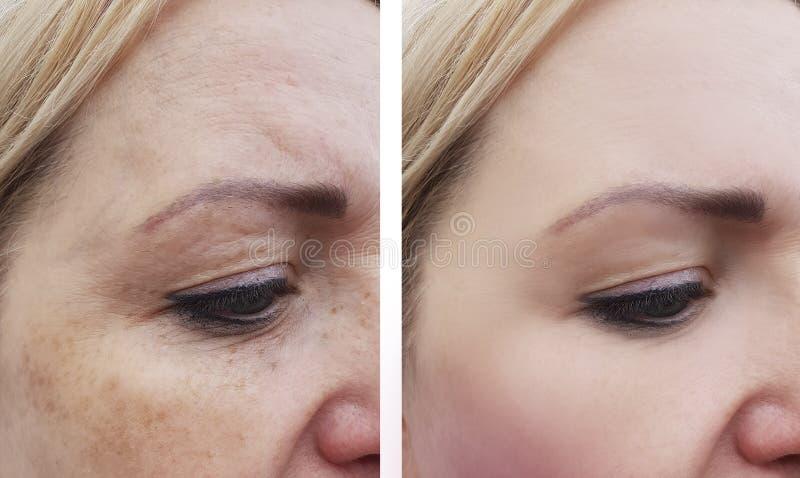 Tillvägagångssätt för hälsa för framsida för dermatologi för kvinnaskrynklapigmentering före och efter arkivfoton