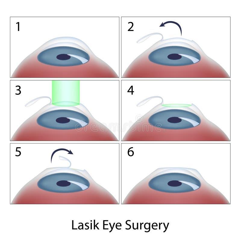 Tillvägagångssätt för Lasik ögonkirurgi vektor illustrationer