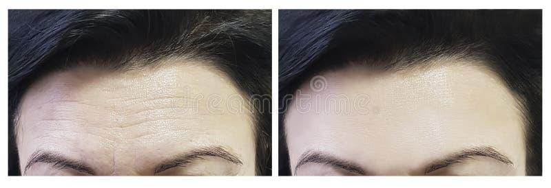 Tillvägagångssätt för panna för kvinna` s före och efter royaltyfria foton