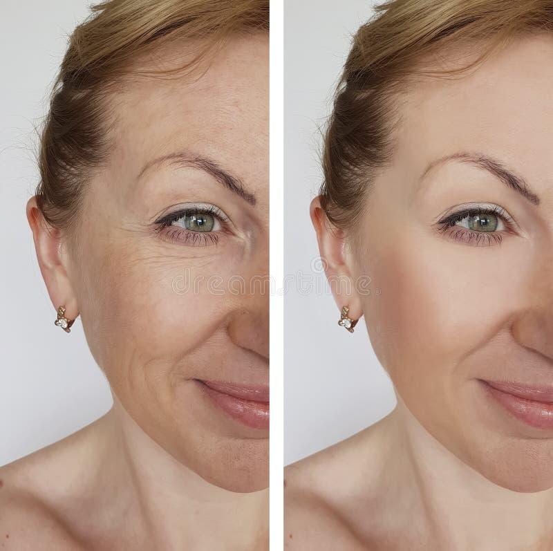 Tillvägagångssätt för skönhetsmedel för korrigering för behandling för framsidaflickaskrynkla före och efter royaltyfria foton