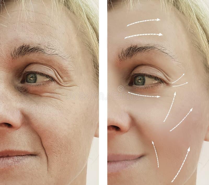 Tillvägagångssätt för skillnad för kvinnligt vuxet ansikts- utfyllnadsgods för skrynklaborttagningsföryngring mogna tålmodiga för royaltyfria foton