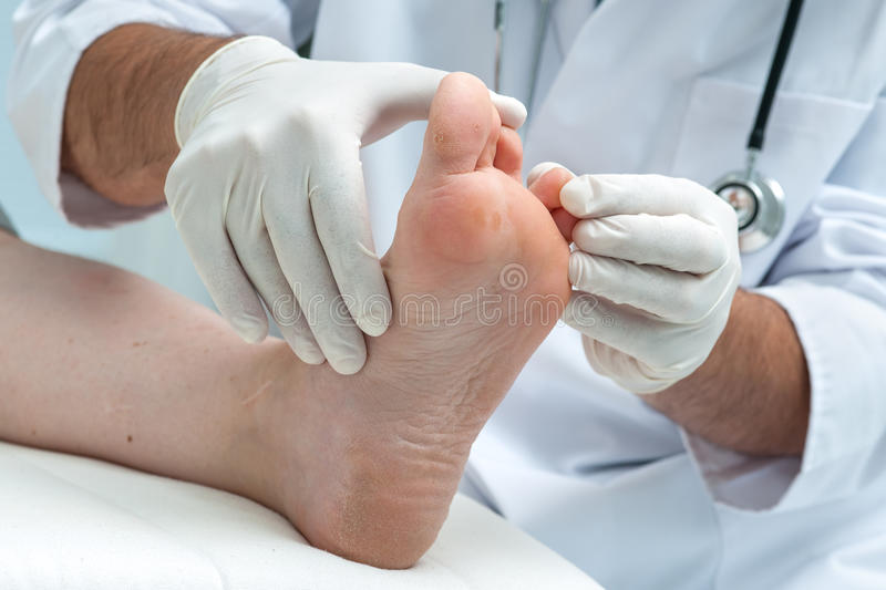 Tinia pedis or Athletes foot royalty free stock photo