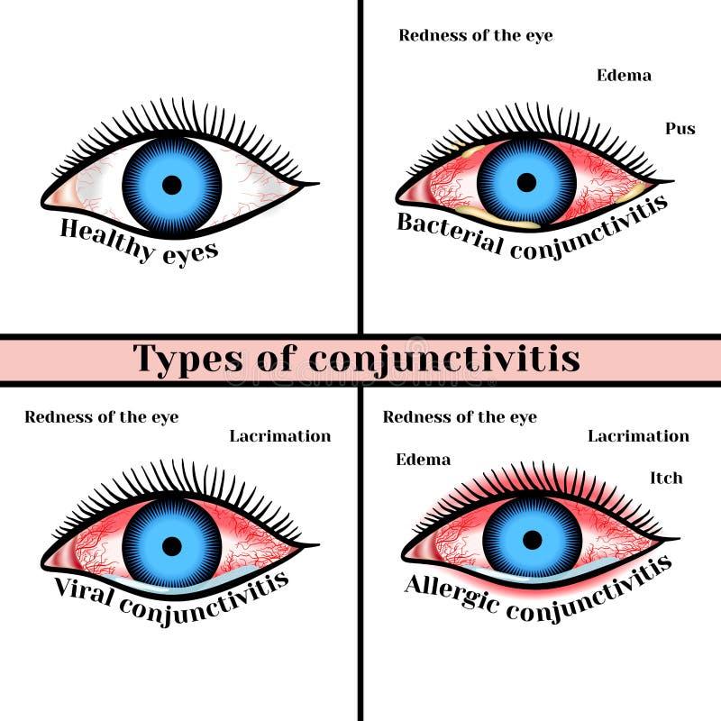 Tipi di congiuntivite Malattie infiammatorie degli occhi illustrazione vettoriale