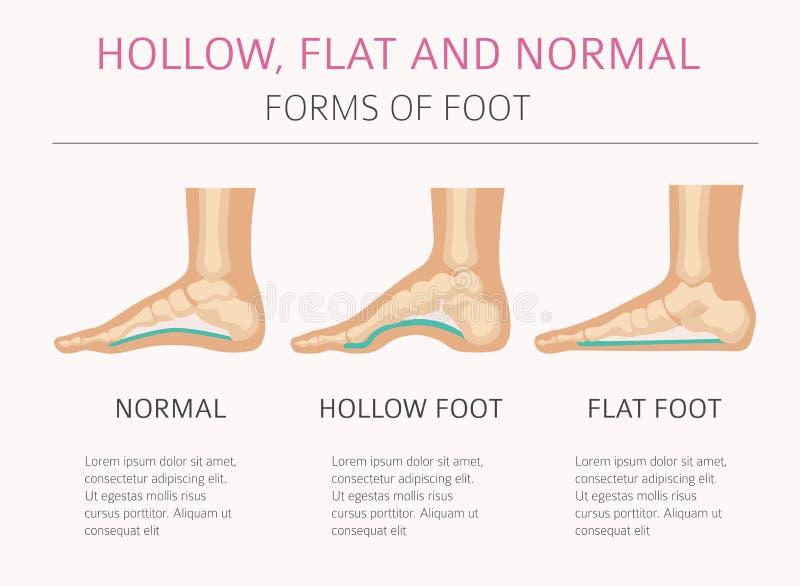 Tipi di deformazione del piede, desease medico infographic Cavità, Florida royalty illustrazione gratis