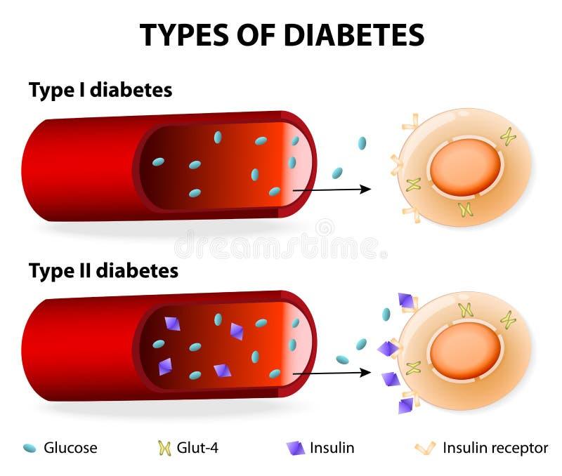 Tipi di diabete royalty illustrazione gratis