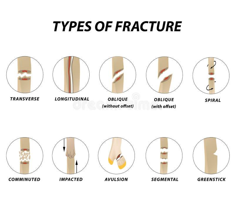 Tipi di fratture Insieme dell'osso di frattura Infographics Illustrazione di vettore su fondo isolato royalty illustrazione gratis