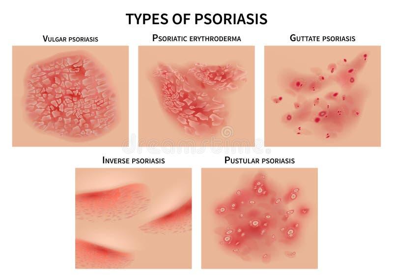 Tipi di psoriasi Alveari della pelle, malattie di derma Illustrazione medica di vettore del primo piano illustrazione vettoriale