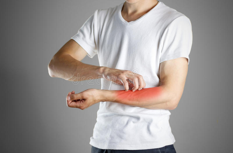 Tipo in camicia bianca che graffia il suo braccio scabies Graffi la mano immagine stock