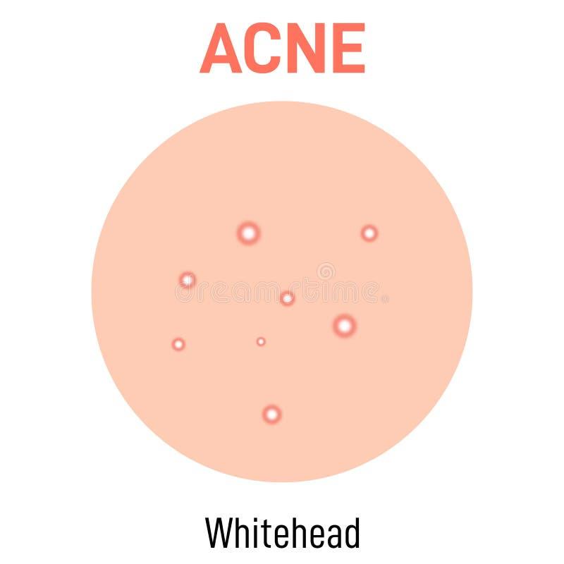 Tipo da acne da pele de Whitehead ilustração stock
